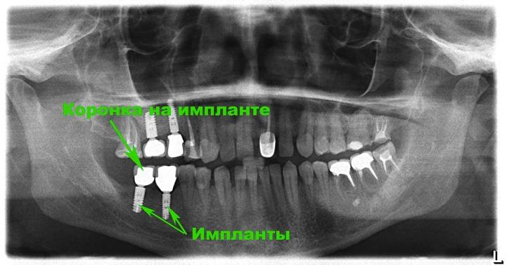 Зубной (дентальный) имплантат