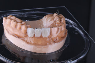 Essex retainer with teeth